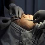 Ilustrasi prosedur bedah plastik. (Bisnis-Reuters)