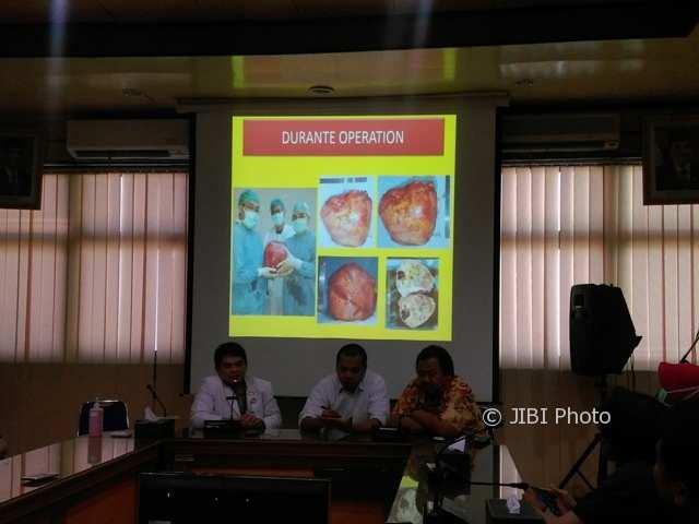 Tumor Seberat 18 Kg Diangkat dari Tulang Belikat Pasien RSUD dr. Moewardi Solo