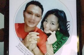 Putri yang dibakar suaminya. (Detik.com)