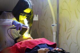 Enggak Nyangka! Ini Manfaat Dahsyat Perawatan Yellow Laser di Ella Skincare