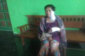Perempuan Boyolali Disiram Cairan Diduga Air Keras, Polisi Kumpulkan Alat Bukti