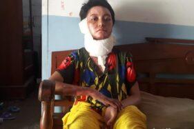 Istri yang Dibakar Suaminya Minta agar Pelaku Dihukum Berat