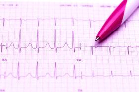 Tanda-Tanda Gangguan Irama Jantung yang Kerap Tak Disangka