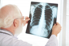 ilustrasi pneumonia (freepik)