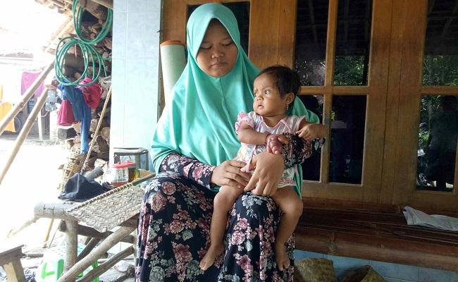 Bayi Sragen, Maira, bersama ibunya dalam yang terinfeksi akibat kutu kucing terancam amputasi. (Muh. Khodiq Duhri/Solopos)