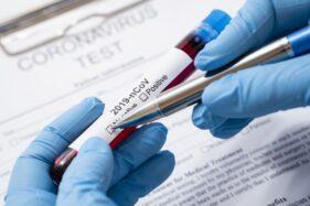 Ilustrasi tes virus corona atau Covid-19 (Freepik)
