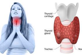 Gejala Tumor Tiroid yang Sering Tak Disadari