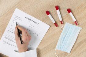 Kontak Erat dengan Pasien Positif Covid-19, 1.000 Warga Ponorogo Jalani Rapid Test