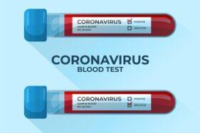 Ilustrasi hasil tes virus corona (Covid-19). (Freepik)