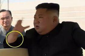 Kim Jong-Un dengan bekas luka yang menjadi sorotan. (Okezone)