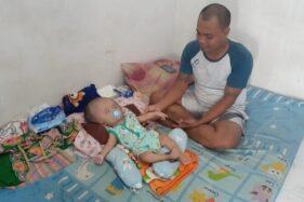 Bayi laki-laki bernama Elvano Kenzie Mahardika yang menderita hedrosefalus yang tinggal di Kota Madiun, Rabu (3/6/2020). (Abdul Jalil/Madiunpos.com)