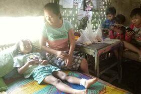 Pergelangan kaki kiri Elvira Orizadiyanta, bocah berusia lima tahun asal Kampung Wonowoso, Sine, Sragen, mendapat jahitan empat kali setelah tersayat benang layangan, Jumat (10/7/2020). (Solopos/Moh. Khodiq Duhri)