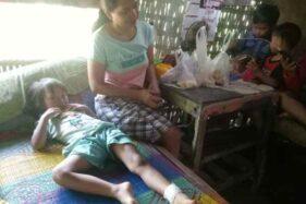 Pergelangan kaki kiri Elvira Orizadiyanta, bocah berusia lima tahun asal Kampung Wonowoso, Sine, Sragen, mendapat jahitan empat kali setelah tersayat benang layangan, Jumat (10/7/2020). (Moh. Khodiq Duhri/Solopos)