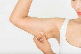 Ilustrasi berlemak, kelebihan berat badan (Freepik)