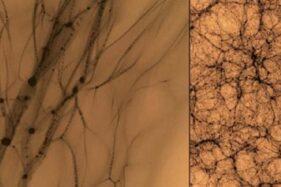 Ilmuwan Perbesar Dark Matter, Kerangka Alam Semesta Terungkap