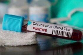 Ilustrasi sampel darah yang terindikasi positif virus corona. (Antara)