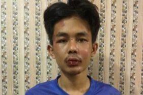 Ini Tampang AA, Pelaku Penusukan Syekh Ali Jaber di Lampung