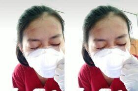 Tangkapan layar perjuangan seorang perawat melepas masker medis. (Istimewa/Tiktok/Freishaputri)