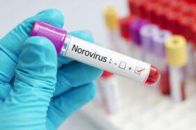 Ilustrasi norovirus. (cnnindonesia.com)
