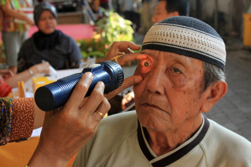 Dijuluki Si Pencuri Penglihatan, Ini Indikasi dan Penyebab Glaukoma