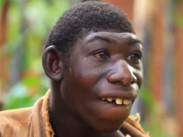 Dibully Gara-Gara Berbeda, Pria Ini Diajak Ibunya Hidup di Hutan