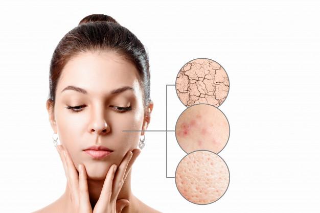 Punya Masalah dengan Skin Barrier, Perbaiki Dengan Cara Ini