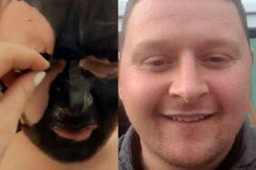 Laki-Laki Ini Kehilangan Alis Gara-Gara Keliru Pakai Masker Wajah