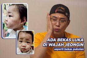 9 Bulan Diadopsi, Anak Balita Disiksa Hingga Tewas