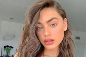 Dinobatkan Wanita Tercantik di Dunia, Model Asal Israel Malah Dapat Komentar Jahat