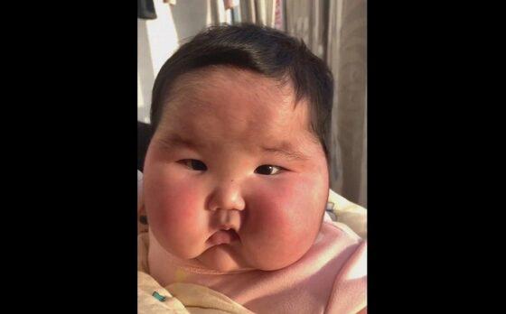 Bayi setelah diolesi krim steroid. (The Sun)