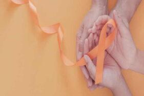 Meski Pandemi, Jangan Tunda Pengobatan Kanker Pada Anak