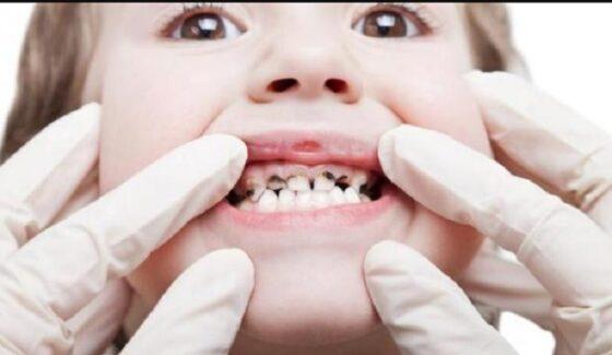 Karies pada gigi anak (Liputan6.com).