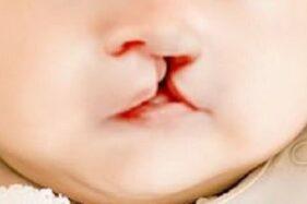 Kabar Gembira, Bakal Gratis Operasi Bibir Sumbing di JIH Solo