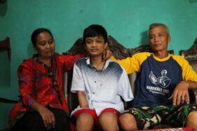 Kisah Pilu Alfian Pelajar SMK Klaten, 2 Tangannya Diamputasi Gara-Gara Kecelakaan Saat PKL