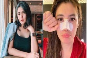 8 Seleb Indonesia Ini Akui Lakukan Operasi Hidung, Siapa Saja?