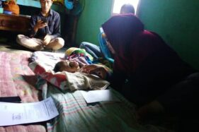 Bupati Banjarnegara Bantu Biaya Pengobatan Bocah Penderita Hidrosefalus