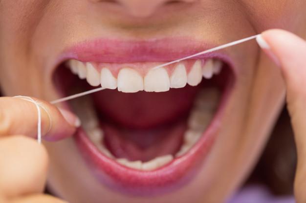 Cara Mudah Mencegah Karang Gigi