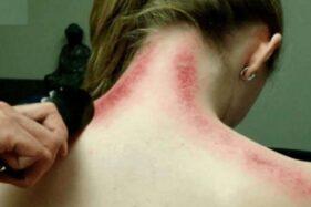Dilakukan Gibran untuk Usir Masuk Angin, Ini Bahaya Kerokan di Leher