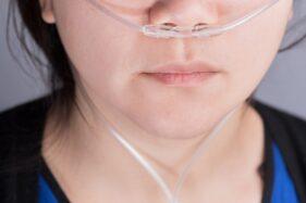 UNS Kembangkan Nasal Cannula untuk Pasien Covid-19