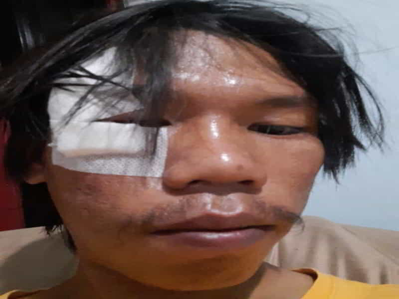 Zaenal, mahasiswa yang mengaku dipukuli saat meminta sertifikat vaksinasi di GBK, Jumat (30/7/2021).