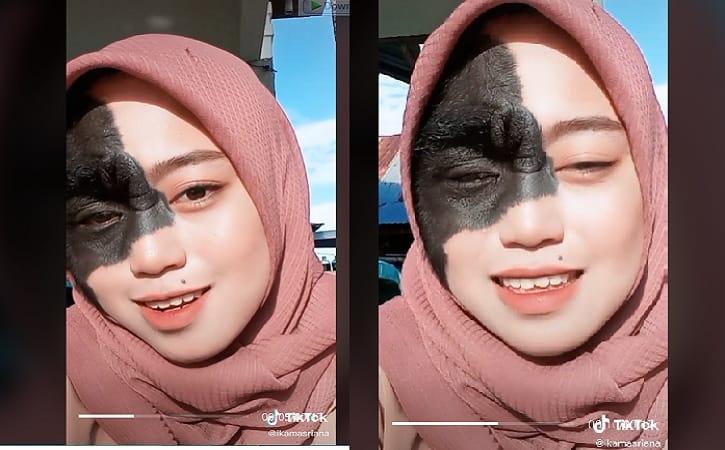 Tiktoker yang di-bully karena memiliki tanda lahir di wajah. (Instagram/ @ikamasriana)