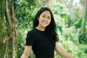 Instagram Rachel Vennya Hilang, Termasuk Bukti Foto Liburan di Bali